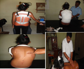 SCOLIOSIS Special Ayurveda Treatments Sri Lanka